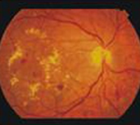 Diabetes and Retina_clip